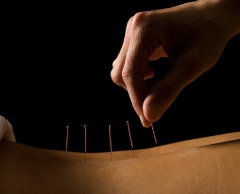 Isnt All Acupuncture Chinese - Japanese Needle Therapy Bayside Melbourne