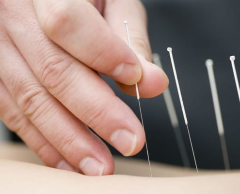 Results Of Japanese Needle Therapy - Reduce Stress Treatment