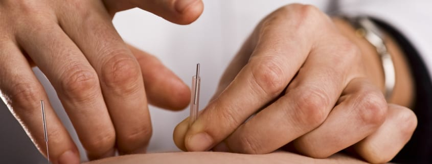 Your Post Christmas Detox And Japanese Needle Therapy - Tapping in acupuncture needle